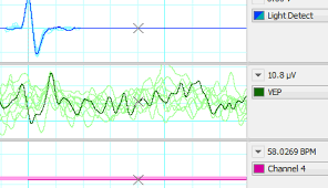 labchart life science data acquisition and analysis software