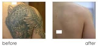 laser tattoo removal seattle tattoo lightening kirkland laser