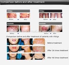 uvb l for vitiligo ce fda approved home use psoriasis vitiligo and eczema treatment