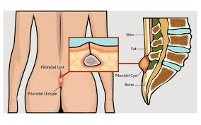pilonidal cyst location if a person that has surgery to remove a pilonidal cyst is forced to