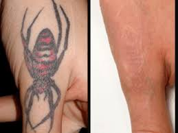 tattoo removal lexington kentucky laser treatments