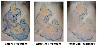 how does a tattoo fade after laser tattoo removal