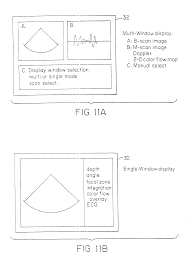 Multi Flow Map Patent Us6248073 Ultrasound Scan Conversion With Spatial