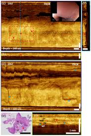osa ultrahigh speed endoscopic optical coherence tomography for