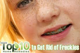 home remedies to get rid of freckles top 10 home remedies