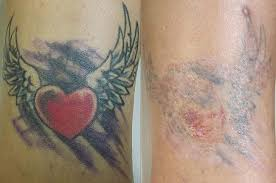 tattoo vanish healing vanish laser tattoo removal and skin aesthetics in fort worth tx