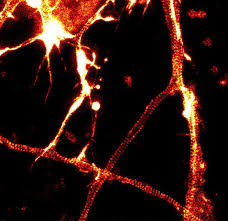 sted rings sir actin spirochrome kit provided by cytoskeleton inc