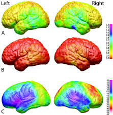 The Anatomy Of The Human Brain Longitudinal Mapping Of Cortical Thickness And Brain Growth In