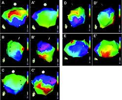 three dimensional mapping of cardiac arrhythmias circulation