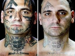 fda tattoo removal no simple process cbs news