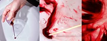 light period with clots what can your menstrual blood tell you about your health