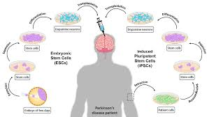 stem cell therapy for parkinson u0027s disease atlas of science