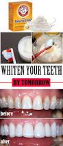 engaging figure bleach for teeth whitening stimulating zoom teeth