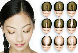 what causes hair loss in women over 50 women s hair loss causes treatments and solutions