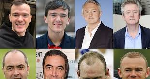 rob brydon hair gordon ramsay and other celebs who ve had hair transplants irish