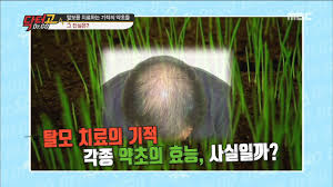 dr go 닥터고 ep 04 miracle herb works to treat hair loss 탈모