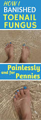 52 best toe nail fungus treatment images on pinterest fungus