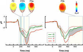 An Information Maximization Approach To Blind Separation And Blind Deconvolution Rapid Brain Responses Independently Predict Gain Maximization And