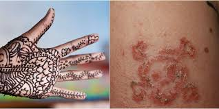 10 year old boy suffers allergic reaction to black henna tattoo