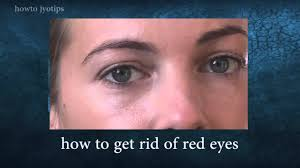 How To Get Rid Of Bed Sores How To Get Rid Of Red Eyes Fast And Easy Youtube