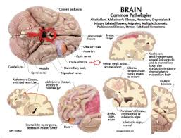 Image Of Brain Anatomy Human Brain Anatomy Model 2900 For Sale Anatomy Now