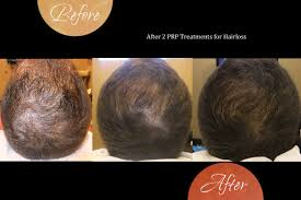 Platelet Rich Plasma Hair Loss Radiance Skin Therapy U0026 Laser Center Be More Of Who You Are