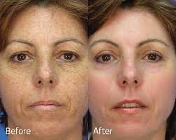 lentigo simplex removal lentigo simplex removal treatments in