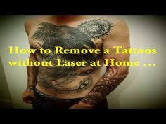 what to do if you your tattoo tattoo removal wrecking balm