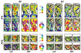 Frontal Boundary Map Visual Field Map Clusters In Human Frontoparietal Cortex Elife