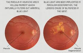 blue light and macular degeneration preventing eye damage with superfoods selectspecs glasses blog