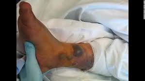 tattoo care swimming man dies after swimming with new tattoo cnn