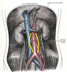 A Anatomy Abdominal Aortic Aneurysm Wikipedia