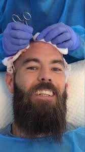 fienes hair transplant brave joe ledley ditches the usual secretism as pictures of him