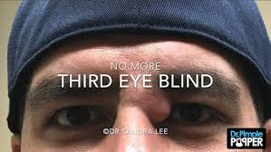 Third Eye Blind Can I Graduate Dr Pimple Popper Bursts Cyst From Man U0027s Eye In Her Most Repulsive