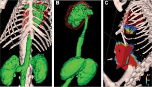 fluorescence tomography of rapamycin induced autophagy and