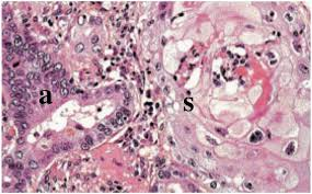 lepidic pattern meaning adenocarcinoma of the lung and subtypes moose and doc