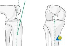 distal tibia reduction u0026 fixation im nailing c1 ao surgery