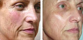 ipl intense pulsed light intense pulse light ipl fotofacial premier plastic surgery
