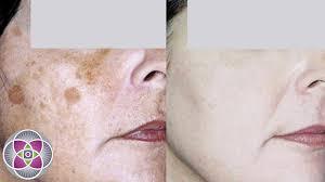 Light Spots On Face Light Spot On Skin The Best Skin Of 2017