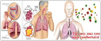 Obat Tbc obat tbc paling efektif terbukti sembuh secara tuntas