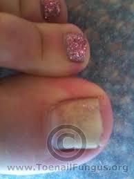 toenail fungus pictures added by viewers u2013 toenail fungus