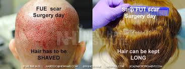 how thick is 1000 hair graft balding blog hairlines archives wrassman m d baldingblog
