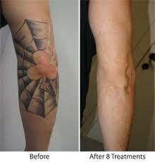 laser tattoo removal beleza botanical skin care u0026 laser aesthetics