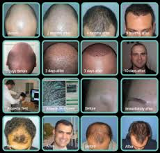 dhi hair transplant reviews dhi india bangalore lavelle junction 4 1 walton road above