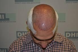 dhi hair transplant reviews hair loss hair transplant and hair restoration advice