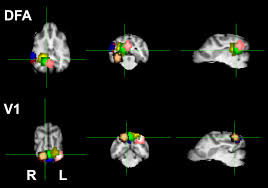awake fmri reveals a specialized region in dog temporal cortex for