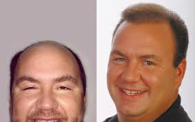 hair plugs for men hair transplant results for men page 7 pai medical group