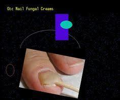 nizoral cream nail fungus nail fungus remedy you have nothing