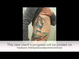 34 best first impressions laser tattoo removal images on pinterest
