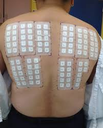 nickel allergy testing allergy patch testing acd